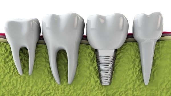 teeth,health, smile,dentist