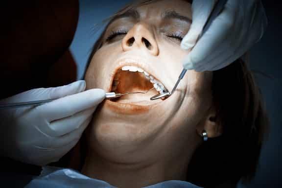 teeth,dentalhealth, smile, dentist, oralhealth